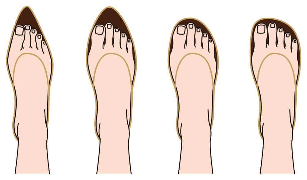 拇趾外翻推薦鞋款